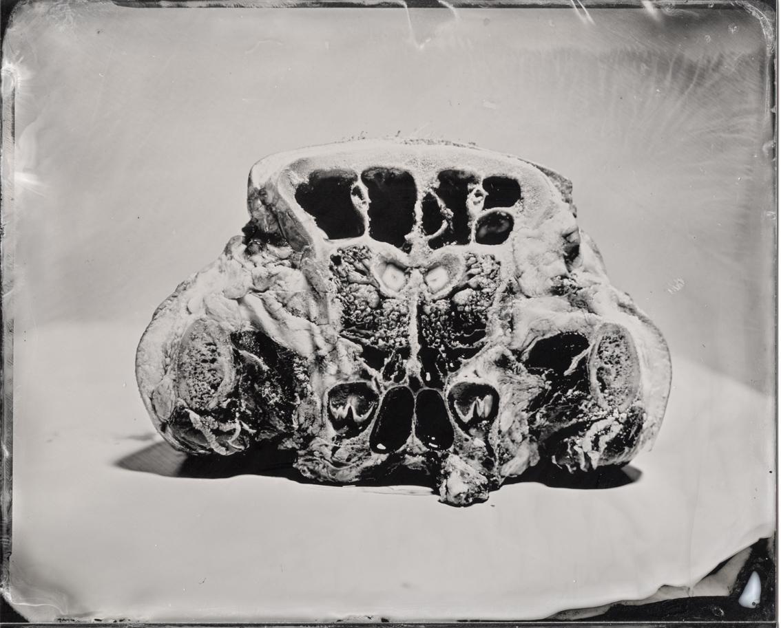 Anatomie011